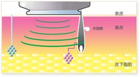 わきが・多汗症の原因である「アポクリン腺」「エクリン腺」が集中する層へマイクロ波を照射します。