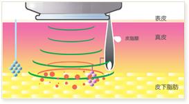 マイクロ波の周波数は、エネルギーが真皮を通過しやすく皮下脂肪で抵抗を受けるものが選択されています。