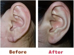 耳垂裂治療の術前術後のイメージ14